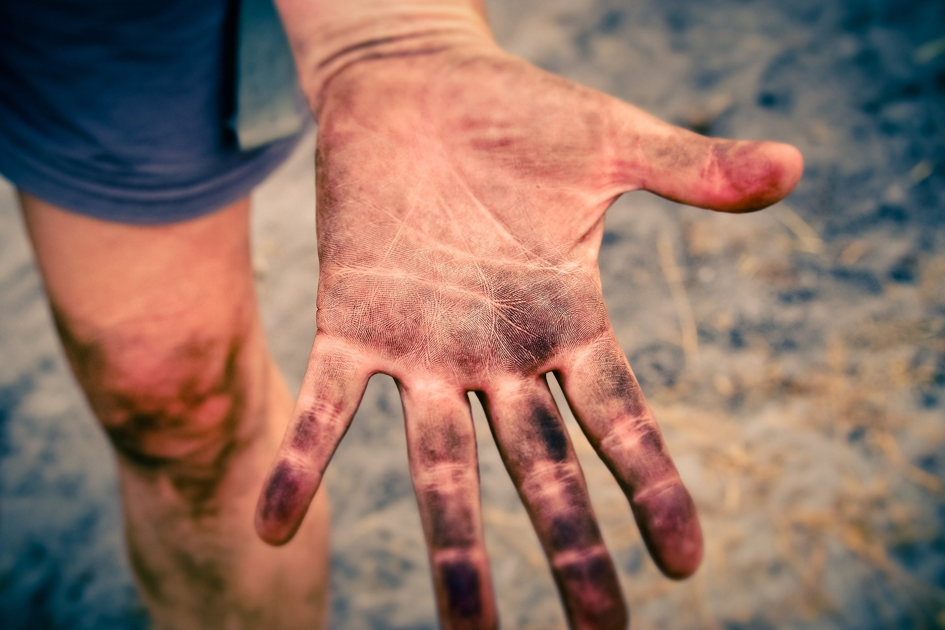 This Riddle is about being dirty. This is the picture of a dirty hand!